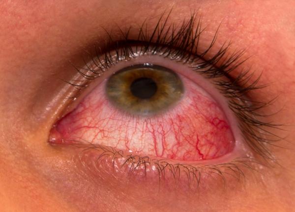 Синдром сухих глаз: причины и методы борьбы